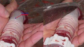 krvavice istiskivanje zraka iz crijeva